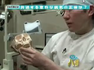顎偏位症で、宮城テレビ・OH!バンデスのバンデスクリニックで取材を受けました。